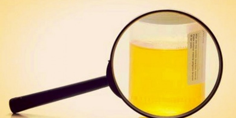 ILUSTRASI-Tes-Urine.jpg