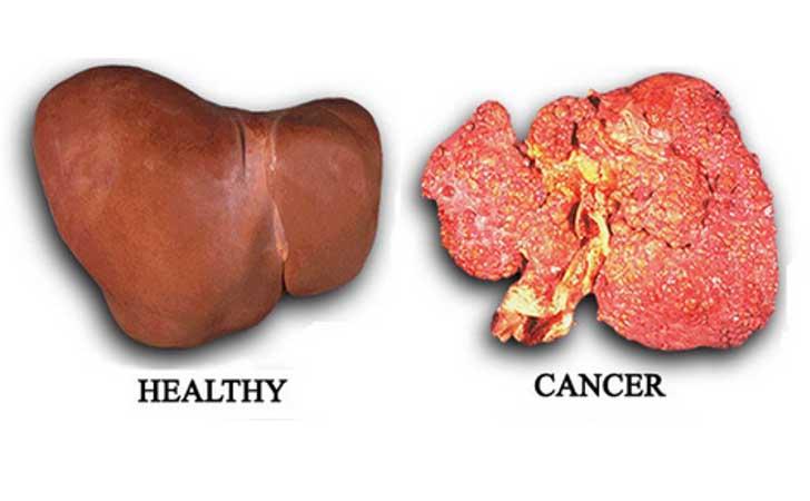 Perbandingan-Hati-Sehat-dan-Idap-Kanker.jpg