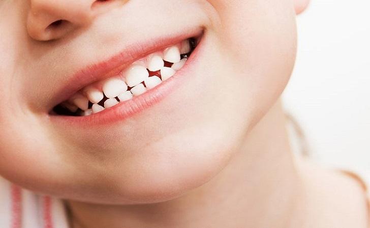 gigi-anak.jpg
